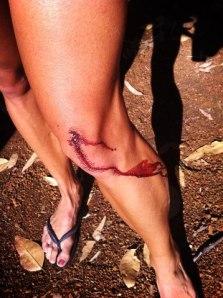 blood leg